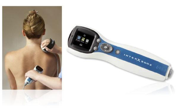 InterX 5002 - Terapia estremamente efficace del dolore