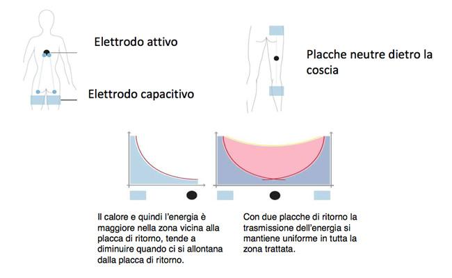 atr-med-diatermia-autoadattativa-capacitivaresistiva-4