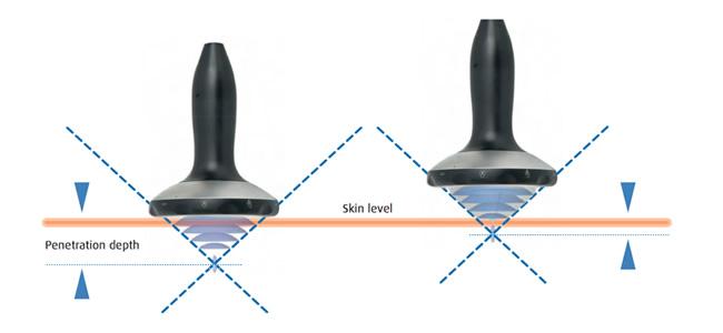 piezowave-2-onde-durto-piezo-da-richard-wolf-e-elvation-prof-di-penetrazione